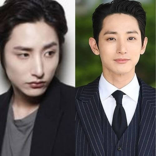 Lee Soo-hyuk Plastic Surgery
